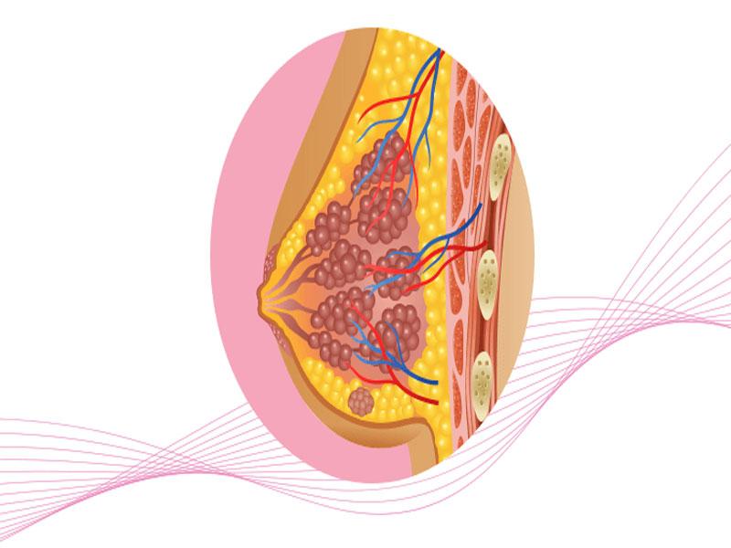 از تشخیص تا درمان سرطان سینه