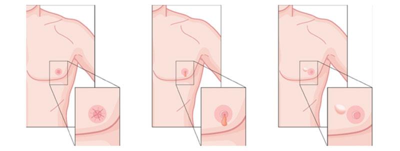 سرطان سینه در مردان