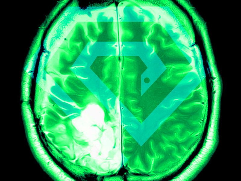 تشخیص و درمان انواع تومور مغزی